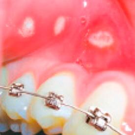 uszkodzenia aftowe spowodowane aparatami ortodontycznymi lub źle dopasowanymi protezami